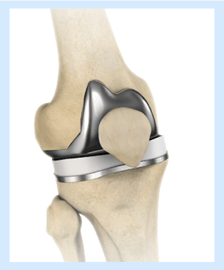 Partial Knee Replacement >> Unicompartmental Knee Replacement Howard County Partial